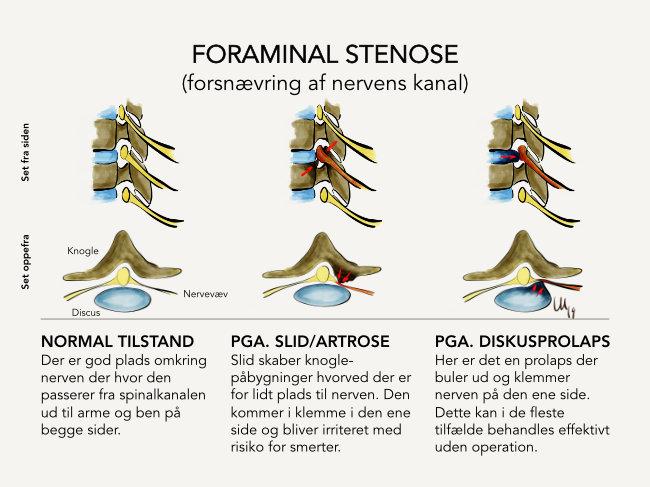 Foraminalstenose