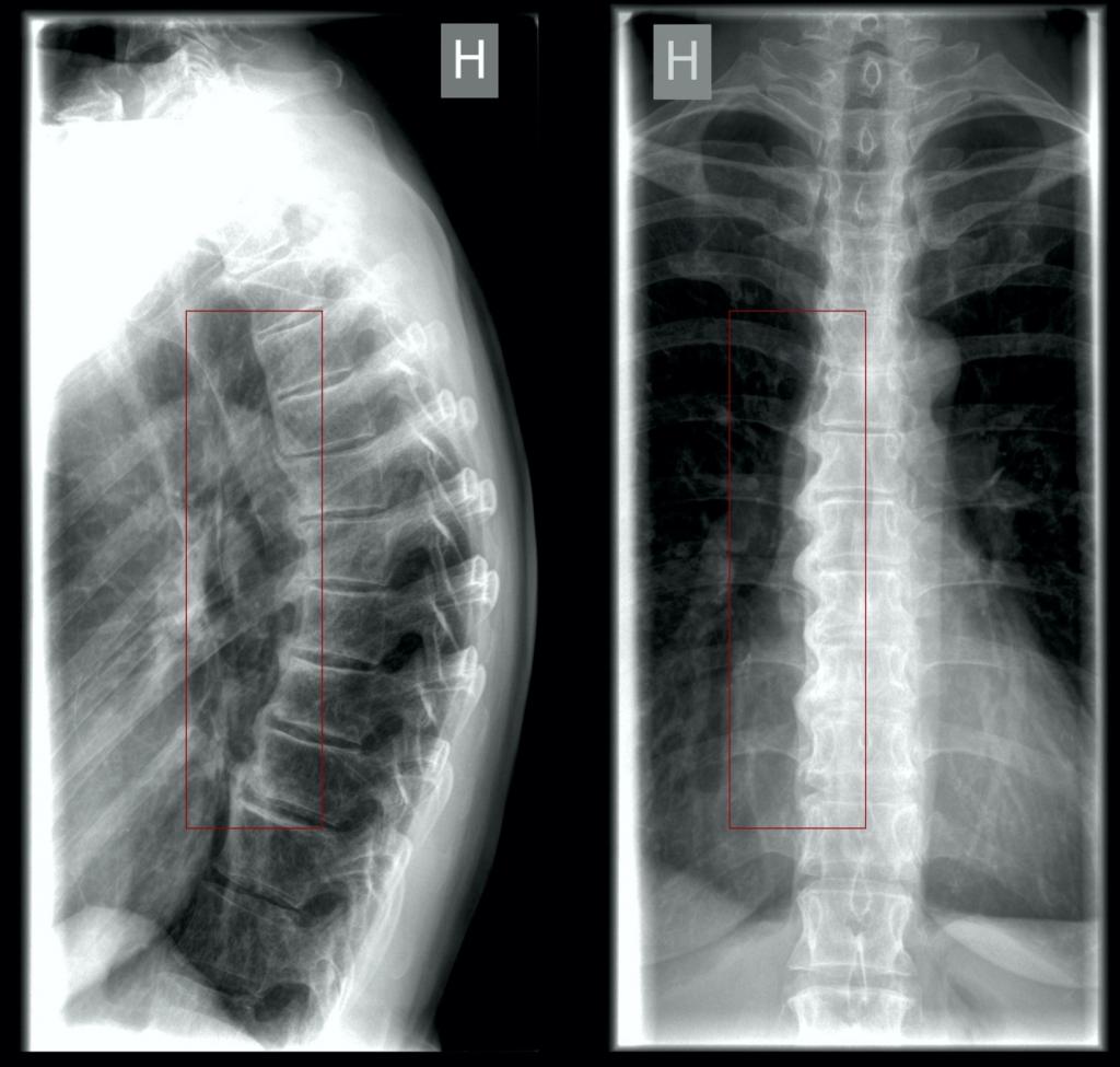 Morbus Forestier røntgen